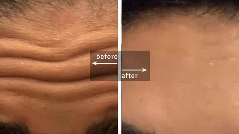 Anti-wrinkle Botox Treatment