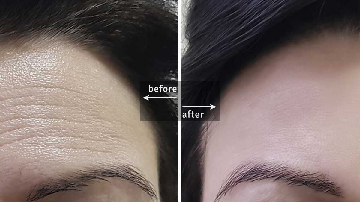 Botox Injections: Facts You Should Know Before and After Taking The Procedure