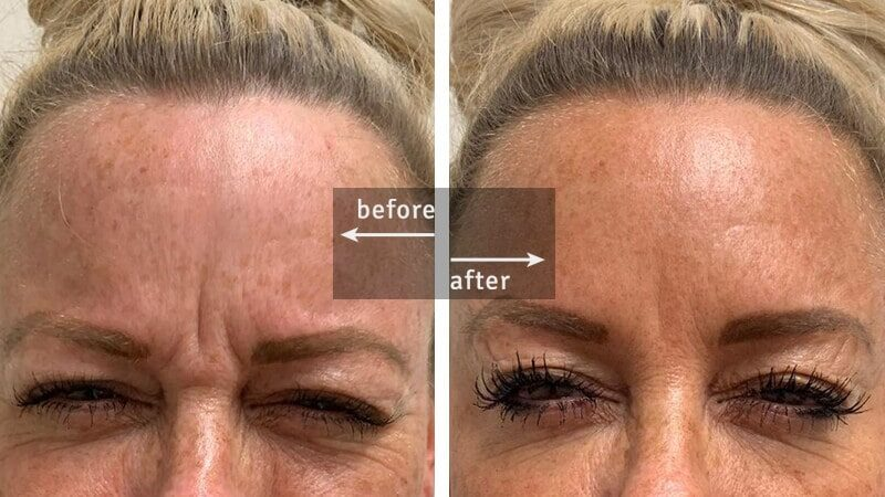 Botox Before-and-After Injection