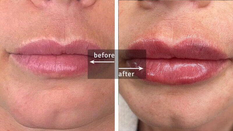 Lips Botox Injection