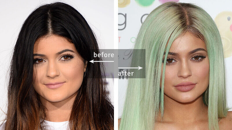 Kylie Jenner Lips Fillers 2013 2015 years