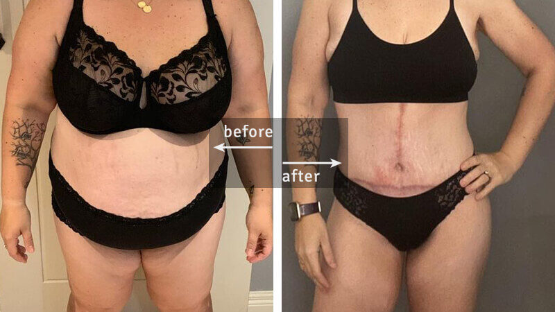 Tummy Tuck Plastic Surgery Before & After