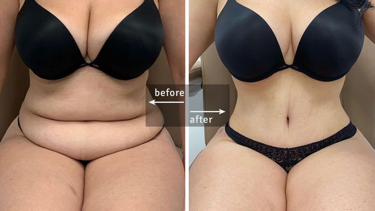 Tummy Tuck Surgery (Abdominoplasty) Before and After Pictures and Facts
