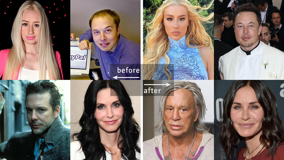 Celebrity Plastic Surgery: Before & After Pics Showing Difference