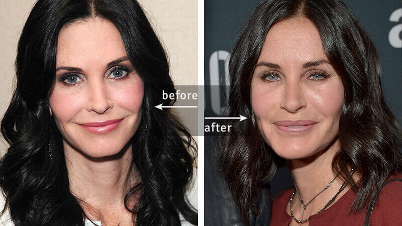 Courtney Cox Before-and-After Plastic Surgery