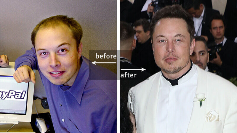Elon Must Before-and-After Plastic Surgery