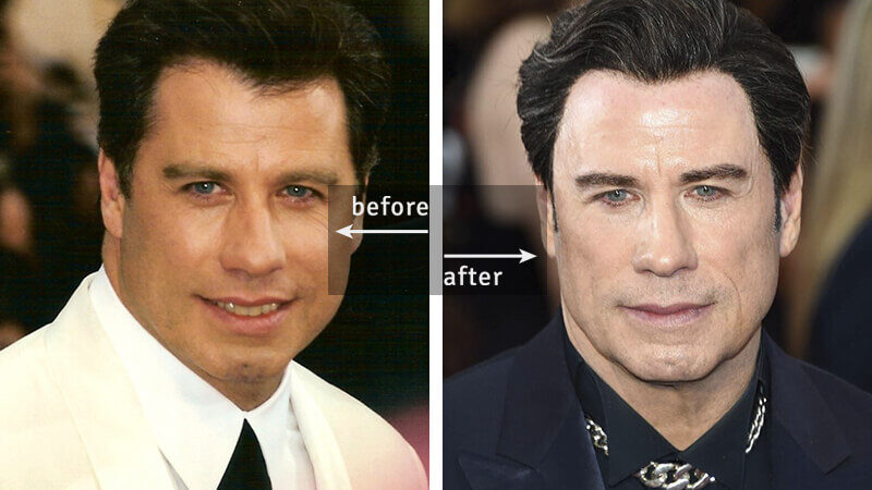 John Travolta Before-and-After Plastic Surgery