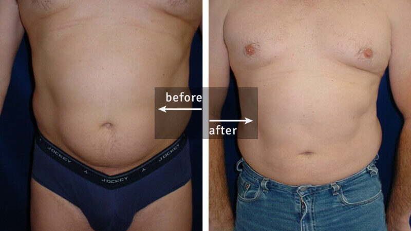 Ultrasound Liposuction Before and After