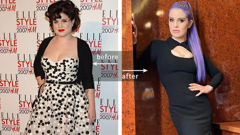 Kelly Osbourne Weight Loss - Before & After